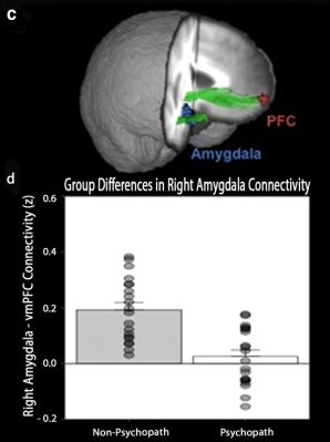relationship between prefrontal cortex and antisocial behaviour The cause of antisocial personality disorder, or asp, is unknown  both the  temporal lobes and the prefrontal cortex help regulate mood and behavior   damage his ability to form intimate and trusting relationships, which may explain  why.